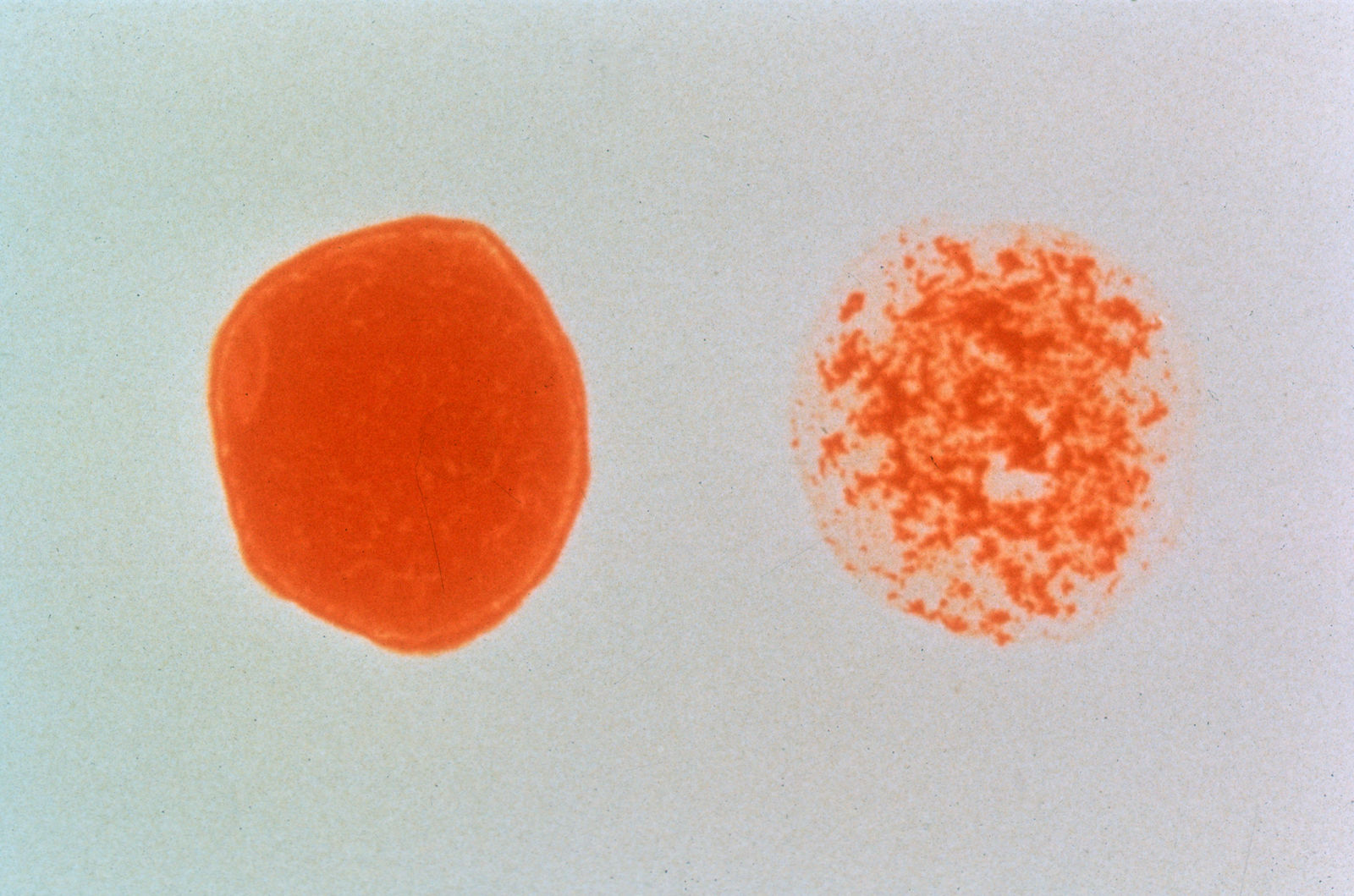 CSIRO_ScienceImage_2724_HIVpositive_blood_cell_vs_HIVnegative_Blood_Cell